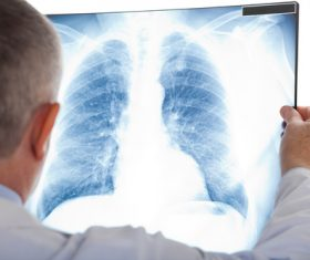 Doctor sees patient lung X-ray film Stock Photo