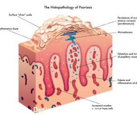 The histopathology of psoriasis illustrator vector