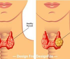 Thyroid nodule medical illustration vector