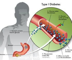 Type diabetes medical illustration vector
