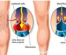 Varicose veins medical illustration vector