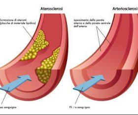 Vascular occlusion medical illustration vector