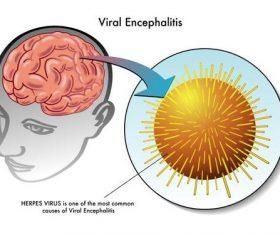 Viral encephalitis medical vector