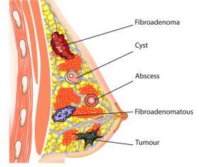 Female breast fibroadenoma vector