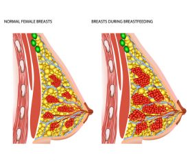 Female breast lesion structure vector