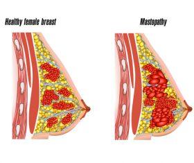 Healthy fenale breast structure vector