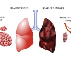 Healthy lungs and lungs of smoker vector