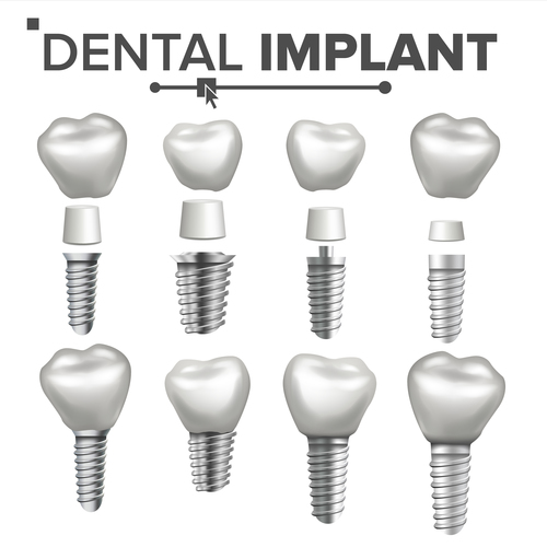 Decomposed dental implant vector