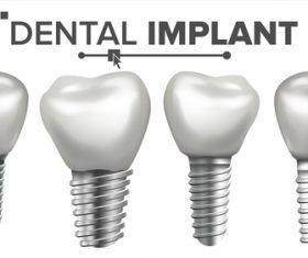 Dental implant model vector